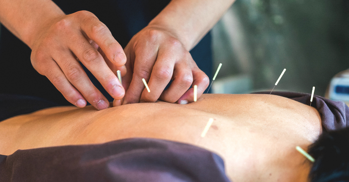 What are the main licensed Acupuncturist practices?