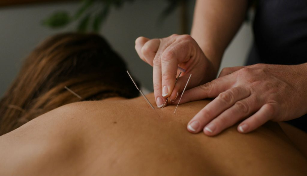 Acupuncture Different Types