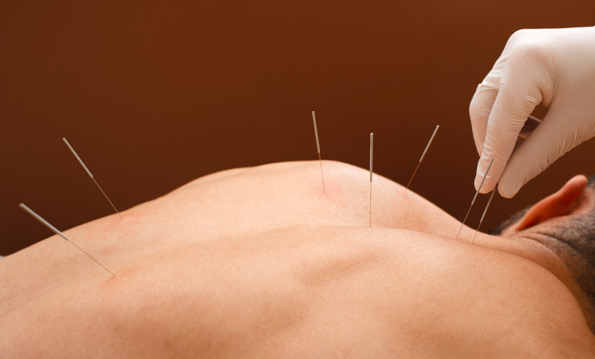 Complete Acupuncturist FengYu Zhao Profile
