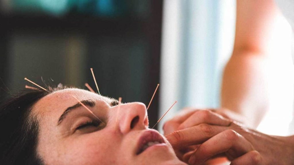 Facial Acupuncture Points Cosmetic