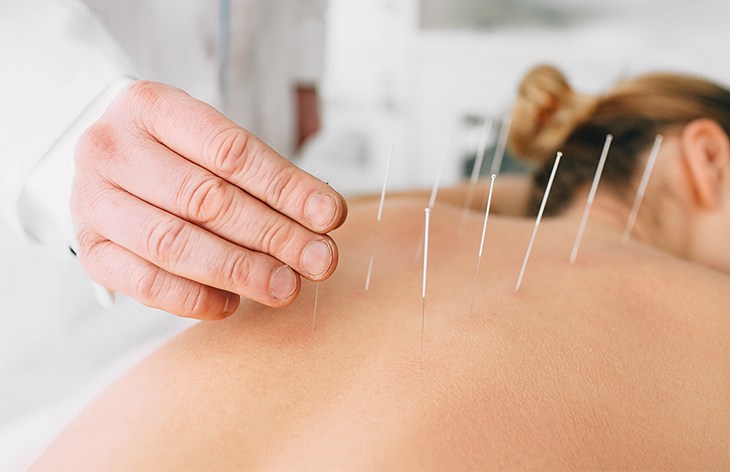 An Overview of Acupuncture and TCM